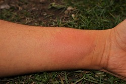 Skin allergy, allergic. Yellow wasp : stung by a wasp worker. Yellow hornet stings a man's arm. It's also called a German wasp or European wasp. Yellowjacket or yellow jacket. Wasps, insects, insect