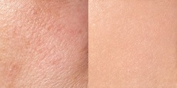 Skin before and after treatment, close-up, square format, horizontal