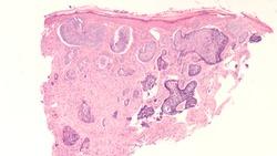 Skin biopsy pathology of basal cell carcinoma, the most most common type of sun induced skin cancer, invading the dermis. Regular use of sunscreen can be preventative.