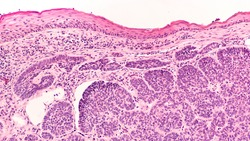 Skin biopsy pathology of basal cell carcinoma, the most most common type of sun induced skin cancer.  Regular use of sunscreen can be preventative.