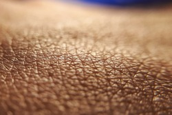 Skin cancer concept. Close up human skin. Macro epidermis texture. Pores and folds of human skin. Dry skin.