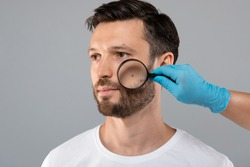 Skin Cancer Concept. Doctor Hand Checking Face Skin Of Middle-aged Man With Dermatoscope, grey studio background, copy space. Dermatologist making check up for bearded man, scanning mole on his face