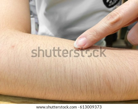 skin in close-up view with swell hears on it,drops arm hairs