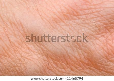 skin macro on 40 years old male arm