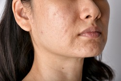 Skin problem with acne diseases, Close up of asian woman face with whitehead pimples, Menstruation breakout, Scar and oily greasy face, Beauty concept.
