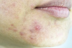 Skin problem with acne diseases, Close up woman face with whitehead pimples on chin, Menstruation breakout, Scar and oily greasy face, Beauty concept.