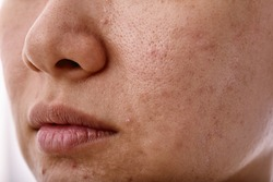 Skin problem with acne diseases, Close up woman face with whitehead pimples on mouth, Scar and oily greasy face, Beauty concept.