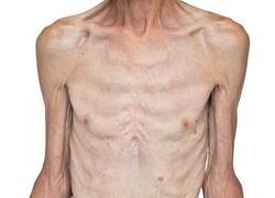 Skinny male torso. Isolated on white background
