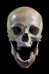 Skull of the person on a black background.