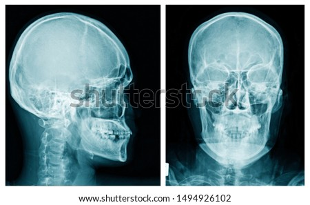 skull x-ray image in blue tone, x-ray image of human head on black background