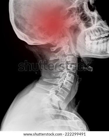 skull x-rays image plane show head injury