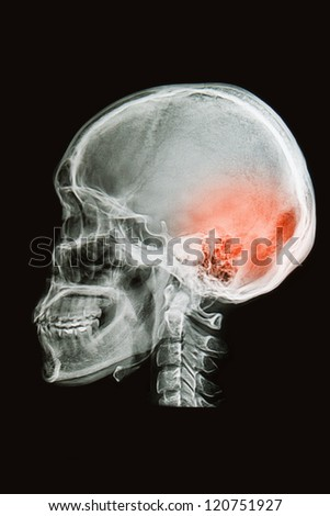 skull x-rays image  sag ital plane show head injury
