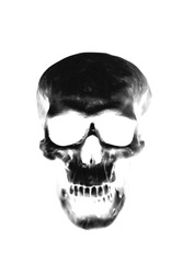 Skull xray.