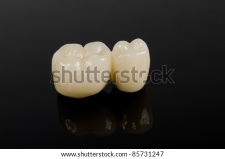 small dental bridge