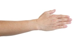 Small white and brown spots on the skin of senior man arm (Idiopathic guttate hypomelanosis).  Isolated on white background.
