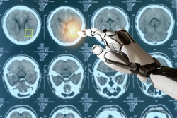 smart medical concept, artificial intelligence use for detect cancer or injury in brain it use deep learning brought what is known as Neural Networks as a way to analyze large and complex datasets.