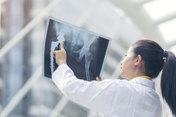 Smart woman doctor check hip bone cancer film x-ray image from machine. Analyze a progress of disease after complete chemotherapy,surgery and take medicine therapy. Healthy concept.