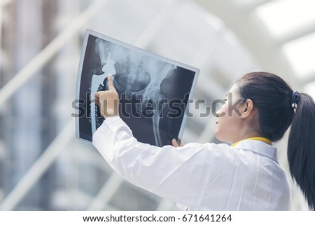 Smart woman doctor check hip bone cancer film x-ray image from machine. Analyze a progress of disease after complete chemotherapy,surgery and take medicine therapy. Healthy concept. #671641264