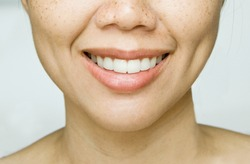 Smile Dimples on Asian Woman Cheek with Freckles Skin