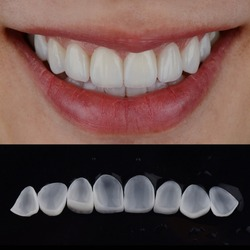 Smile makeover by dental ceramic veneers, close up lip with perfect teeth and close up dental veneers.