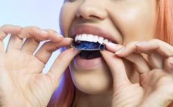 Smiling Girl Holding blue Retainer, Braces for Teeth. Orthodontics Dental Theme, Methods of Teeth (Bite) Correction, Close-up