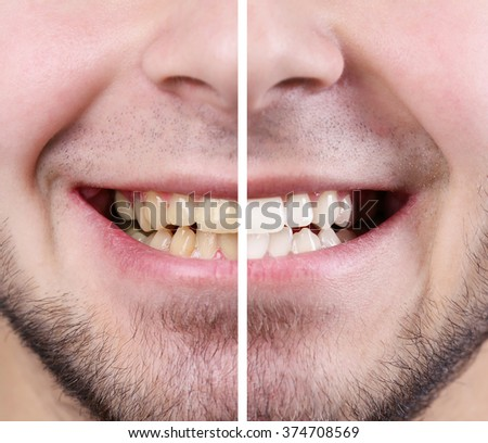 Smiling man: before and after concept