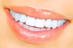 Smiling woman mouth with great teeth. Over white background.