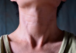 Smooth, diffuse thyroid swelling of Southeast Asian, Myanmar or Burmese young man. A goiter can occur with hypothyroidism or hyperthyroidism. It can sometimes also result from tumors or nodules.