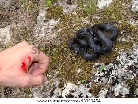 Snake bite!  Snake and man's hand shortly after being bitten (focus centered on snake)