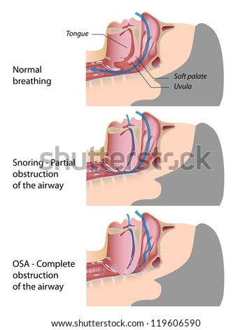 Snoring and sleep apnea - stock photo
