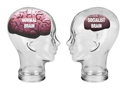 Socialist small brain and normal large brain.