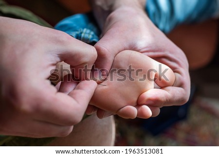 Someone is removing a splinter with stitching needle from the foot of the child Stock photo ©