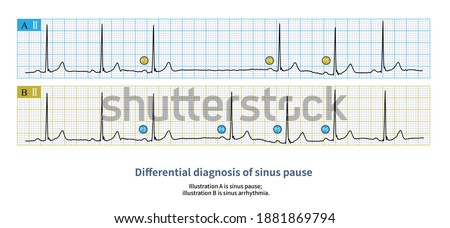 Sometimes, the long P-P interval of sinus arrest needs to be differentiated from the slow phase of severe sinus arrhythmia. Stock fotó ©