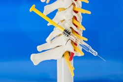 Spinal infiltration as pain therapy. Lateral view of model of cervical spine with cervical vertebrae, vertebral artery, cervical discs, spinous process, spinal nerves on blue background and syringe