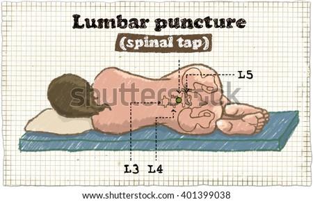 Spinal Puncture Illustration