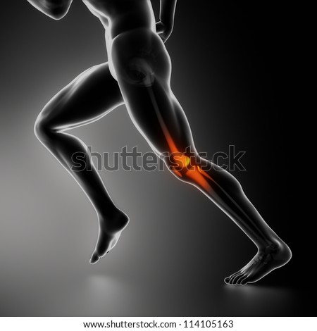 Sports knee injury x-ray concept