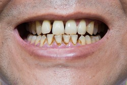 Stain the teeth yellow effects from smoking.