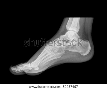 standing foot x-ray, isolated on black background
