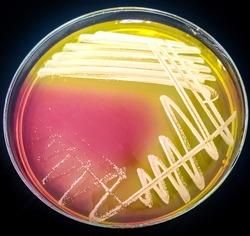 Staphylococcus saprophyticus on Mannitol Salt Agar (MSA)