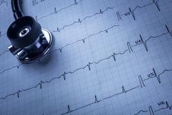 stethoscope and electrocardiogram (ECG)