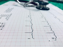 Stethoscope and heart ekg cardiogram of wave in paper report analysis. Medical and healthcare concept.