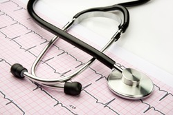 Stethoscope for doctors to examine the patients, a medical instrument on ECG report