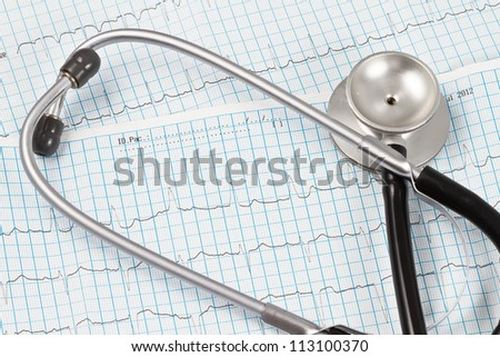 Stethoscope over an ECG chart