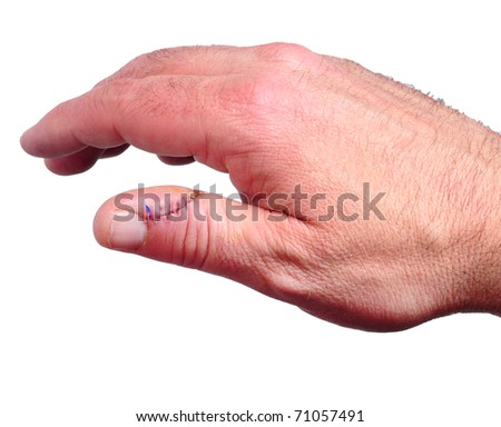 Stitches used to stitch up skin in a thumb of the right hand isolated on white