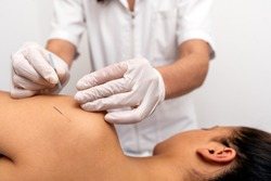 Stock photo of unrecognized worker doing acupuncture procedure to female client in shoulder.