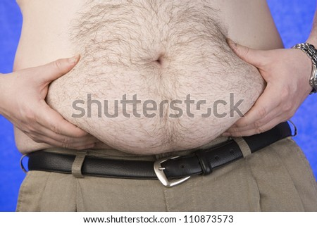 Stomach Of An Obese Man