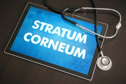 Stratum corneum (cutaneous disease related) diagnosis medical concept on tablet screen with stethoscope.