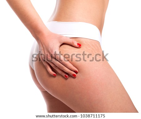 Stretch marks on woman's buttocks. Skin care concept.