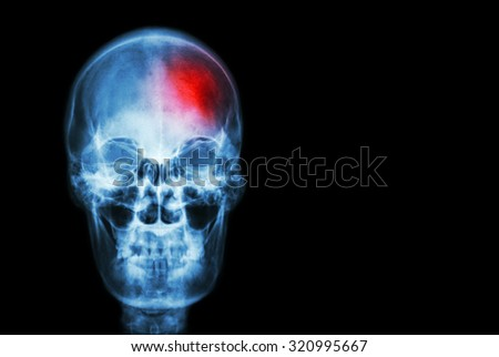 Stroke ( Cerebrovascular accident ) . film x-ray skull of human with red area ( Medical , Science and Healthcare concept and background ) #320995667
