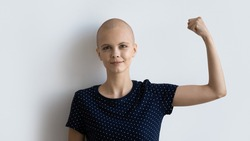 Strong powerful young female ill with cancer look at camera raise fist show biceps inspire to fight. Motivated sick hairless woman encourage oncology patients never give up. Studio portrait on white